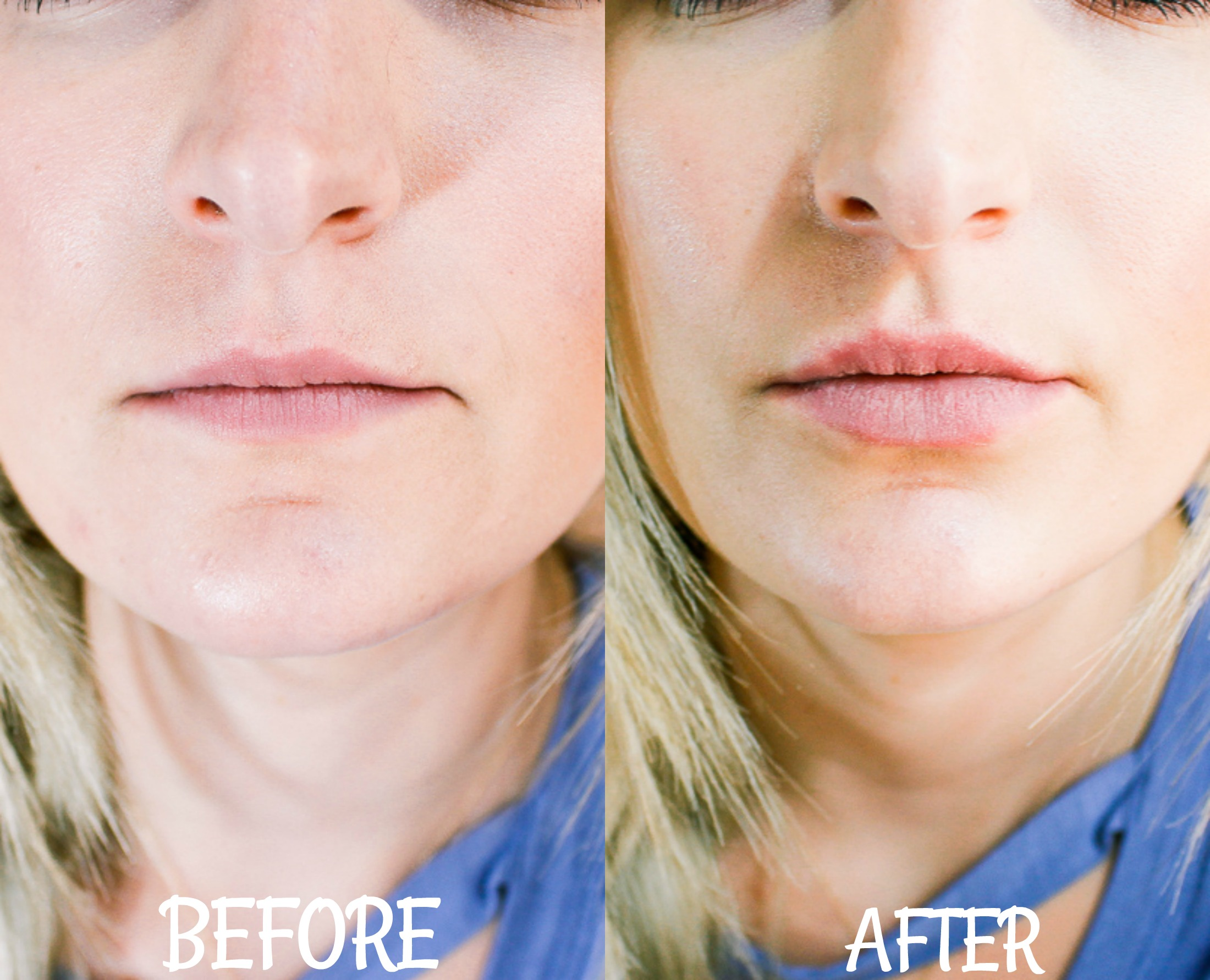 Before/After PMD Kiss Review | Audrey Madison Stowe lifestyle and fashion blogger