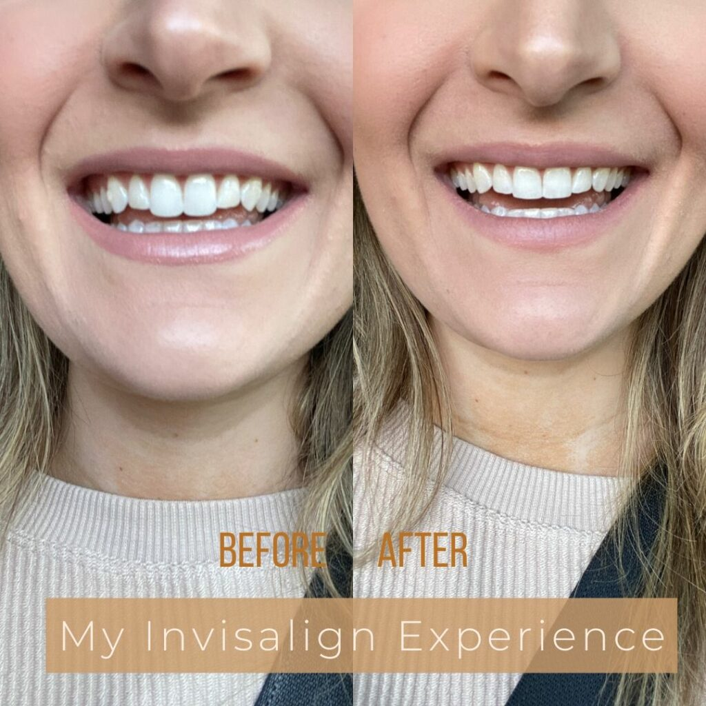 My Invisalign Experience | Audrey Madison Stowe a fashion and lifestyle blogger
