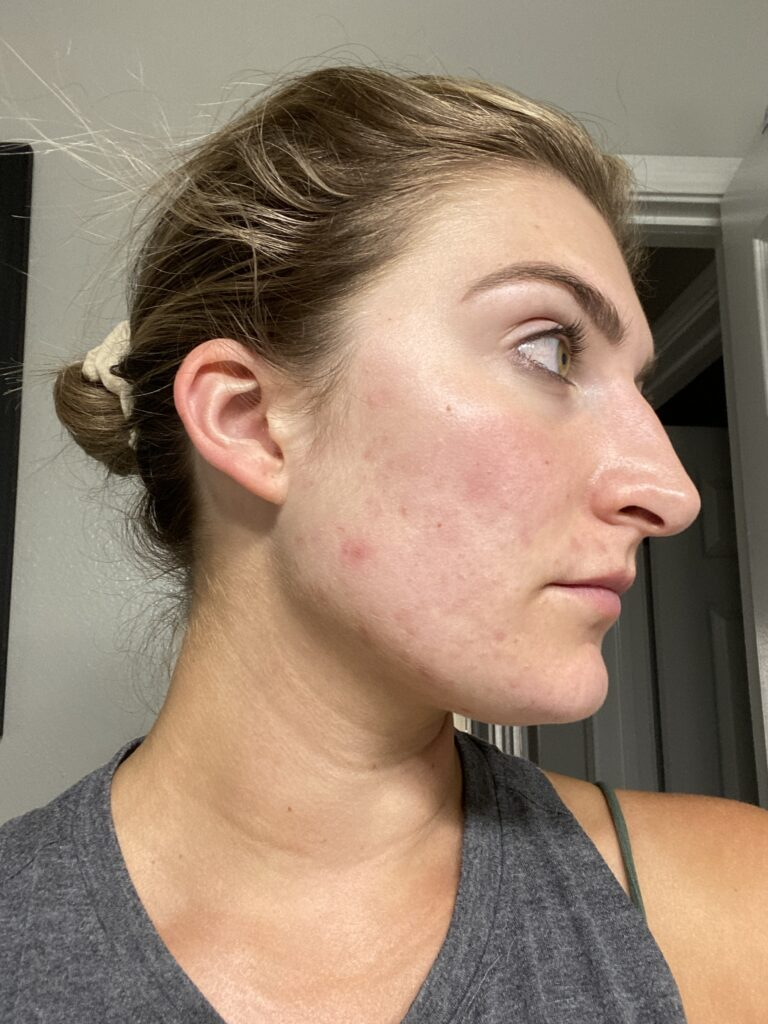 clearing up my skin + my battle with acne